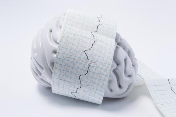 Qué es la epilepsia refractaria: síntomas, causas y tratamiento