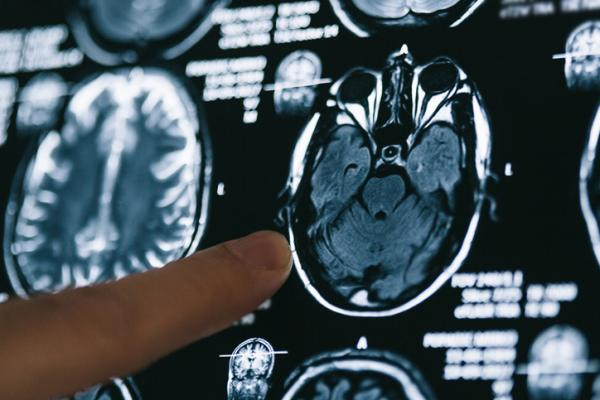 Alzheimer: qué es, síntomas, causas, fases y tratamiento