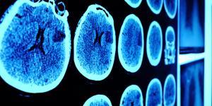 Enfermedades del sistema nervioso central