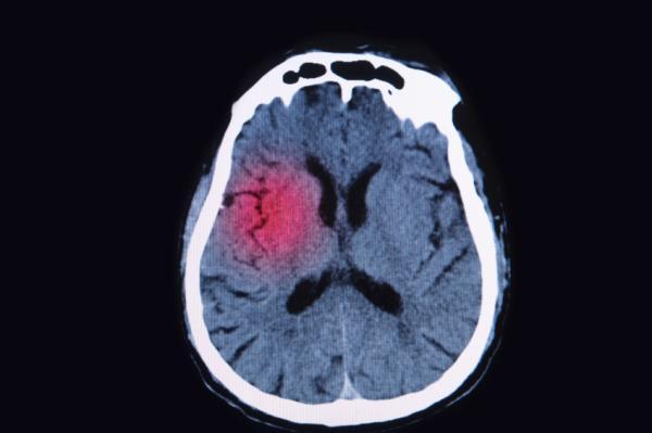 Enfermedades del sistema nervioso central - Enfermedades del sistema nervioso central: principales patologías