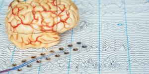 Qué es la terapia de electroshock y cómo funciona