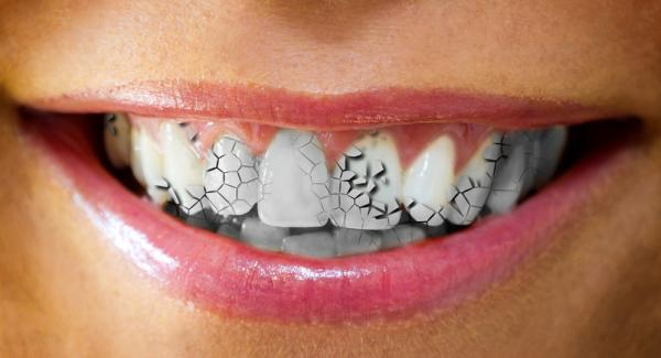 Significado de soñar que se te cae un diente - Qué significa soñar que se te mueven los dientes