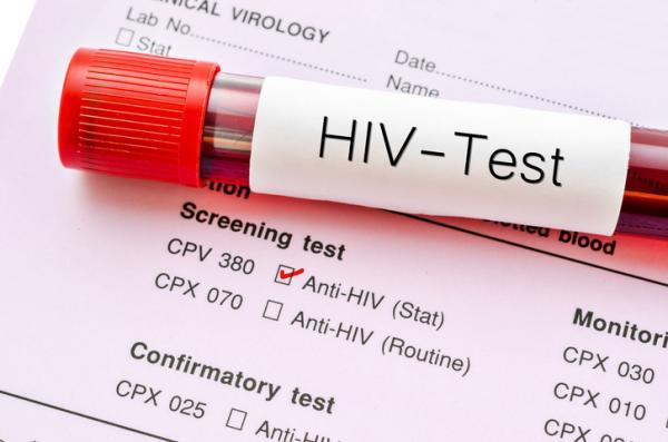 Adaptación al Castellano de la Escala VIH/SIDA-65 - El sida como epidemia