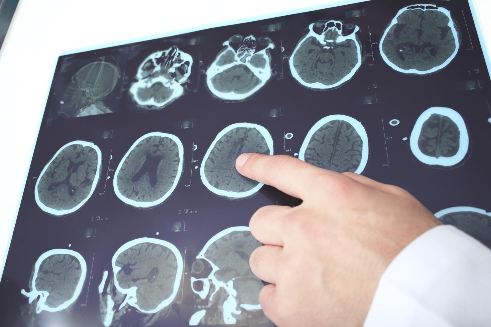 inicio de demencia vascular