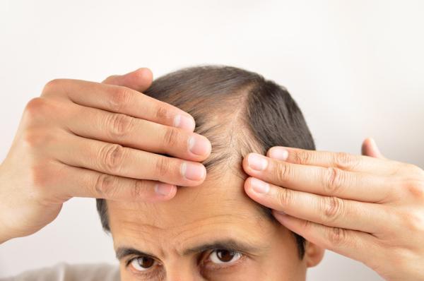Alopecia nerviosa: qué es, síntomas y tratamiento