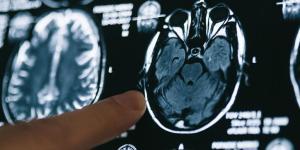 Alzheimer: o que é, sintomas, causas, fases e tratamento