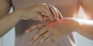 Dermatilomania: o que é, causas, sintomas e tratamento
